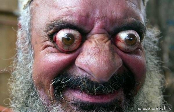 Crazy eyes