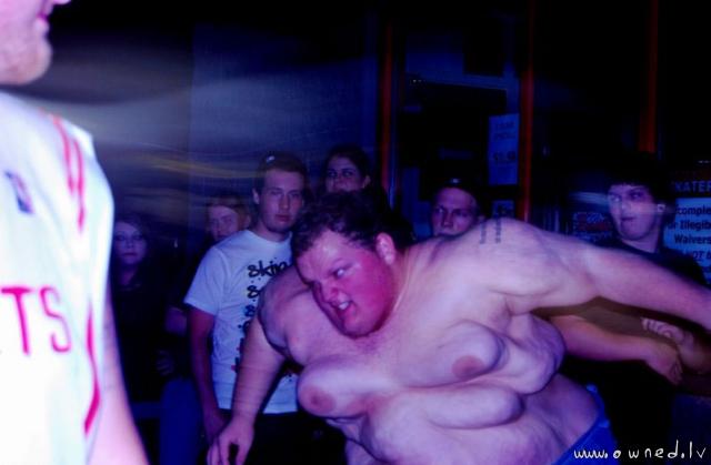 Giant manboobs